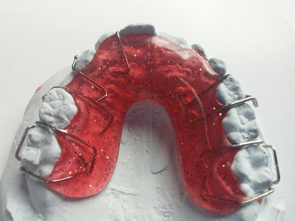 Jak dbać o zęby z aparatem ortodontycznym?