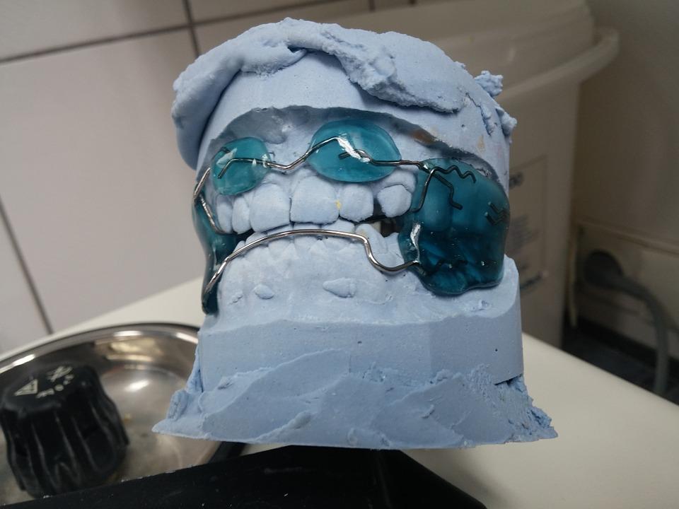 Rodzaje aparatów ortodontycznych