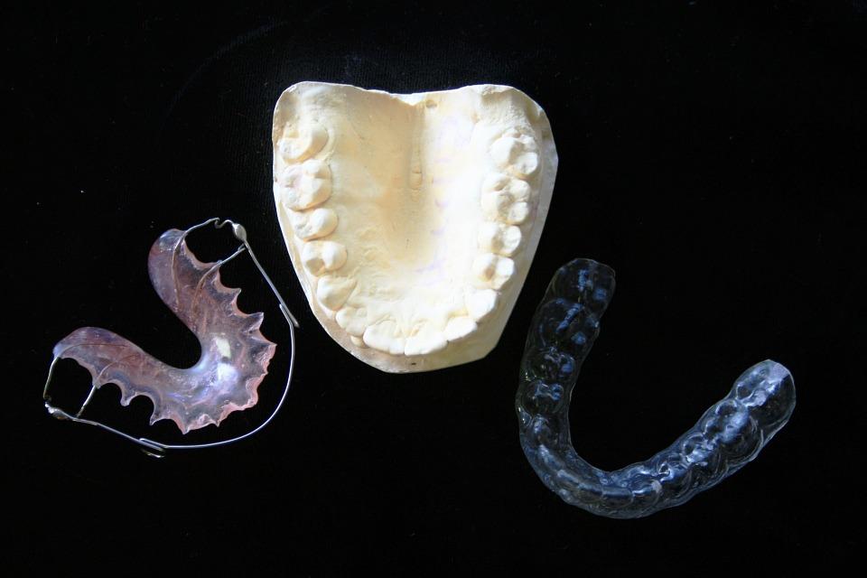 Aparat ortodontyczny dla dzieci